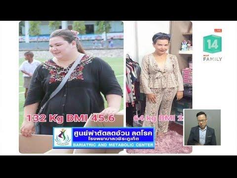 โรคอ้วน ผ่าตัดได้ ใช้สิทธิประกันสุขภาพ - วันที่ 25 Oct 2018