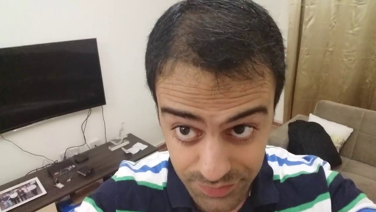 Propecia not working after 4 months.doc - 7 Months Post Ht Minoxidil Finasteride