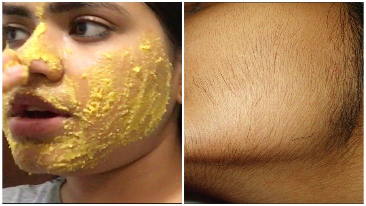 remove facial hair naturally