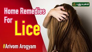 Home Remedies for Head Lice | How to Get Rid of Lice?