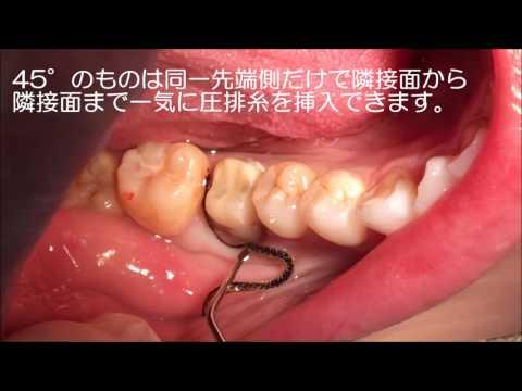 らくらく歯肉圧排できる!ULTRADENT(ウルトラデント)の【フィッシャーズウルトラパッカー】