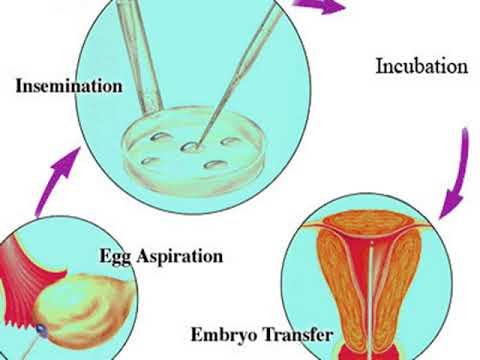 Iswarya Fertility Centre Madurai – IVF Treatment