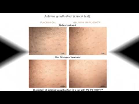 How To Remove Unwanted Hair Permanently For Men Youtube
