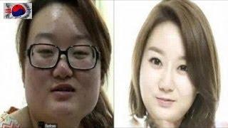 عمليات التجميل في كوريا,إجابات لكل ما قد يخطر ببالك