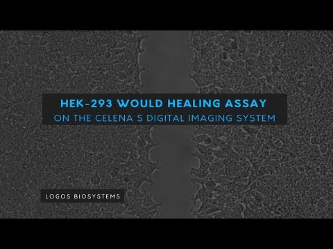Wound healing assay on the CELENA S