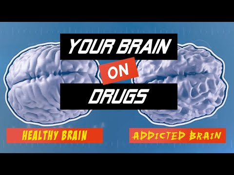 the-brain-on-drugs