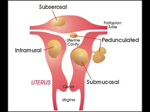 Myoma (Uterine Fibroids) : What is Myoma, Causes, Symptoms and Treatment  for Myoma