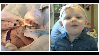 Baby critically injured in alleged daycare abuse, benefit planned to celebrate miraculous recovery