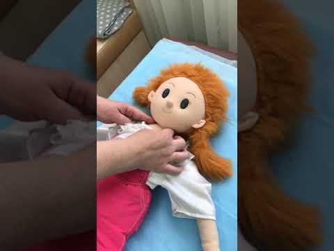 Детская мышечная кривошея и методы ее коррекции