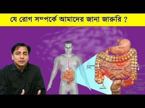 আইবিএস হয়তো আপনারও আছে, জানেন না | Irritable bowel syndrome IBS, Symptoms and causes l