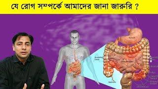 আইবিএস: যে রোগ হয়তো আপনারও আছে, জানেন না Irritable bowel syndrome IBS, Symptoms and causes l