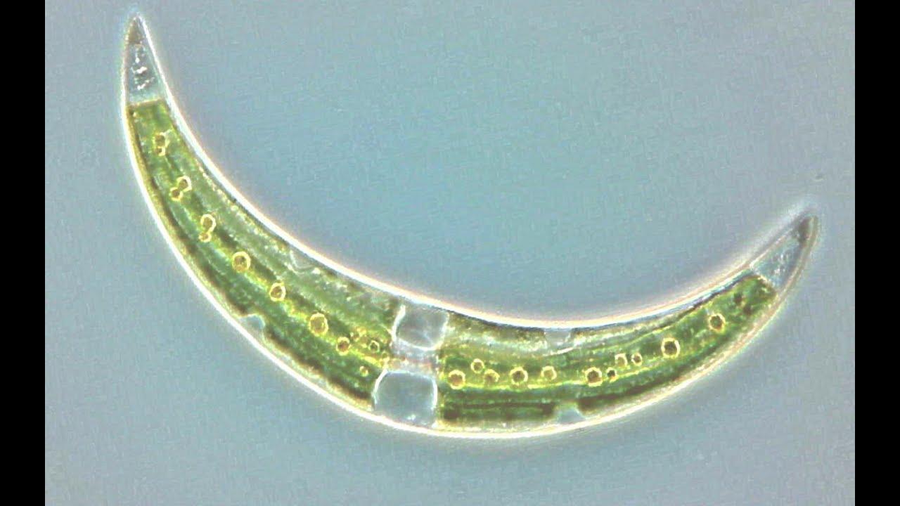 Algen kieselalgen zieralgen blaualgen gr nalgen for Teichwasser