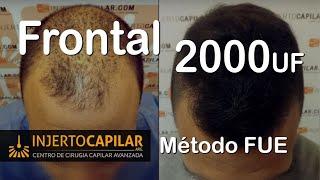 Transplante Capilar X Técnica FUE: 2000 Uf