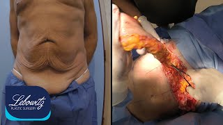 Smart Lipo & Mini Tummy Tuck Huntington Long Island NY by Dr. Lebowitz