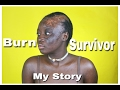 I Am A Burn Survivor & Beautiful | Dear Shalom