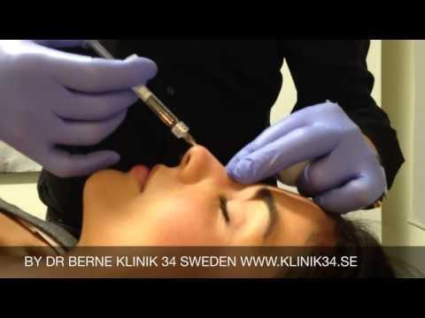 Nose injection @klinik34 by Dr Berne