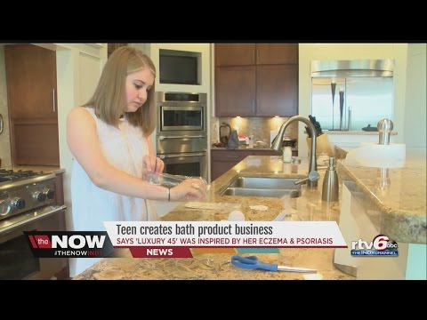 WATCH: Local teen inspired by skin condition creates special bath product business