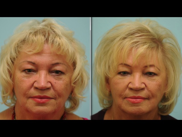Injectable Filler Testimonial (in Russian)