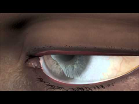 Trachoma Surgery Animation CCLLC
