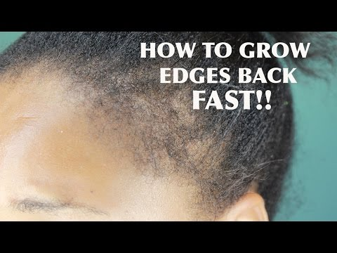 HOW TO GROW YOUR EDGES BACK IN 2 WEEKS