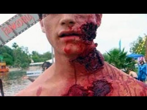 Worst Animal Attacks +18 (Graphic Scenes)