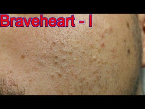 Extraction for Teenage Acne - Part 1 of 3