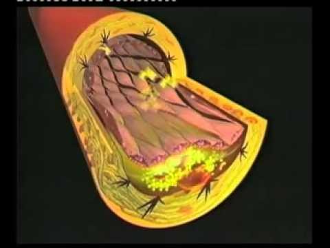 Resultado de imagen para ateromas (placas de colesterol calcificadas)