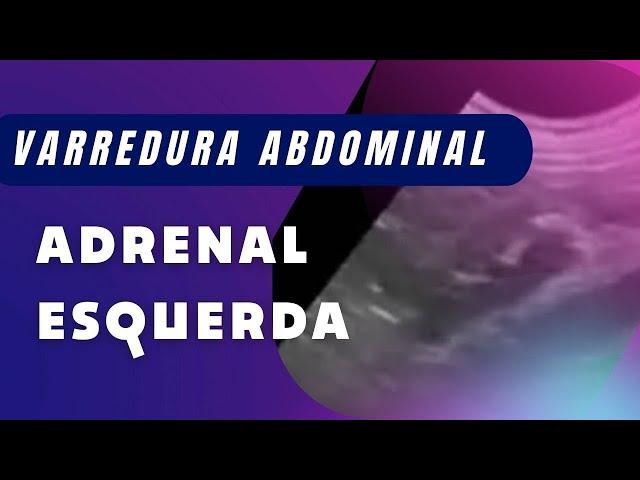 TÉCNICA DE VARREDURA DA ADRENAL ESQUERDA (PACIENTE EM DECÚBITO DORSAL)