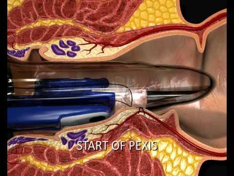 Download THD Hemorrhoid Procedure