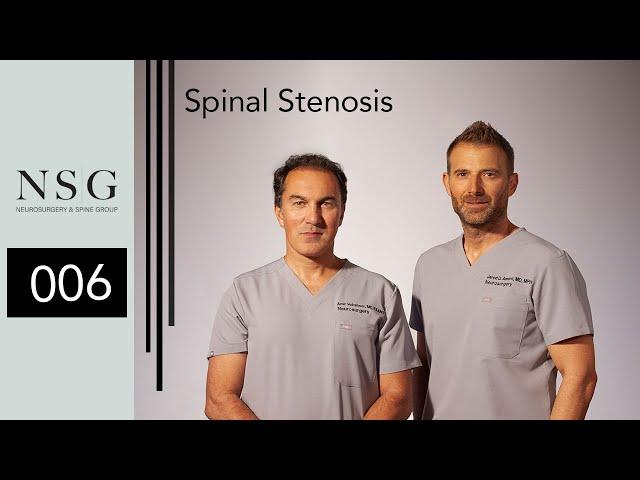 NSG - Spinal Stenosis