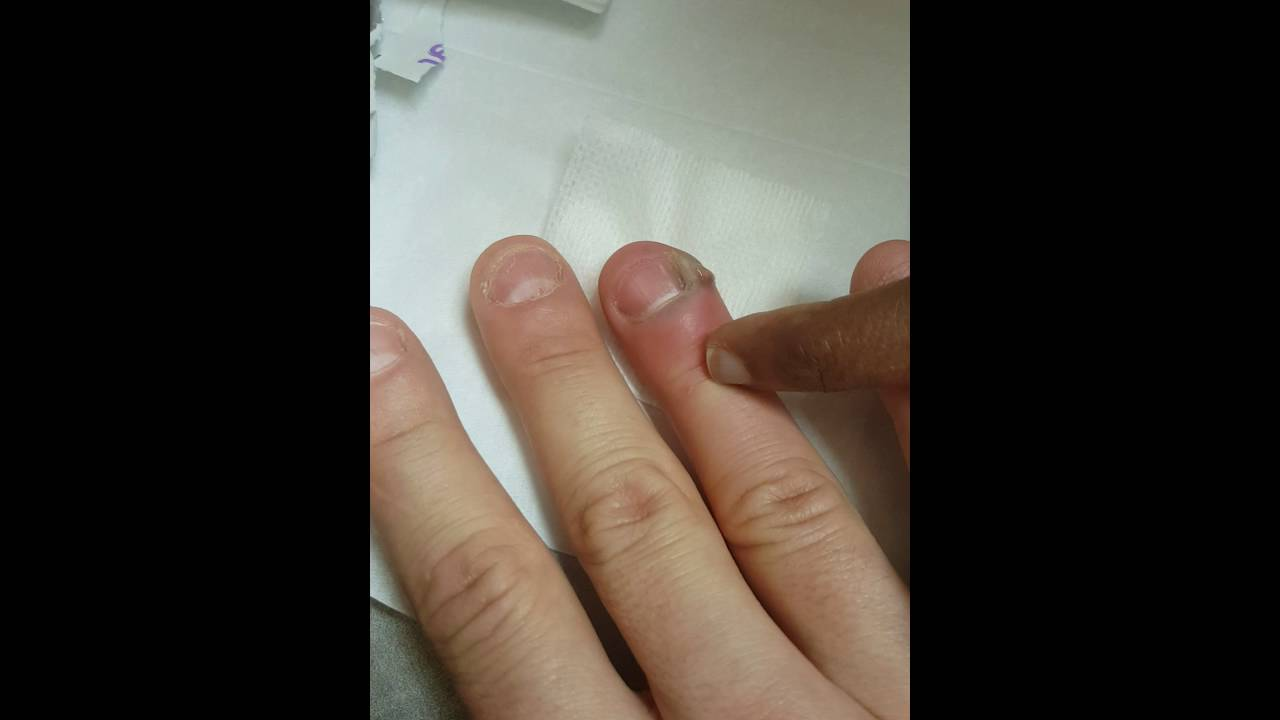 Dont Bite Your Nails Warning