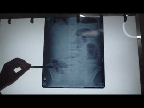 Đánh giá tiêu chuẩn film x quang bụng