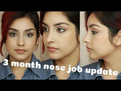 Nose Job Q A How Much Did It Cost 3 Month Update Youtube