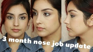 NOSE JOB Q&A  | How much did it cost???? + 3 month Update