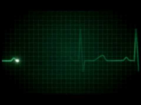 ekg (YOU CAN USE THIS VIDEO)