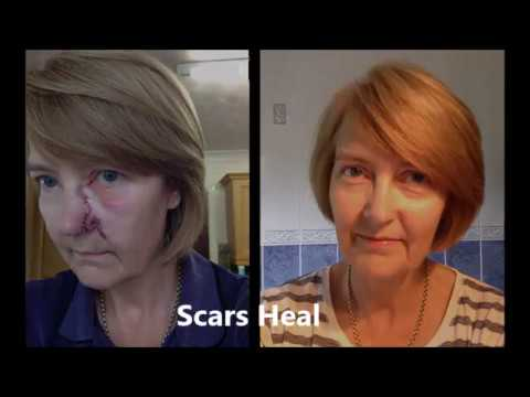 Healing Scar On My Nose