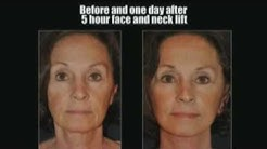 Fort Myers FL day spa face lifts by Dr. Stampar