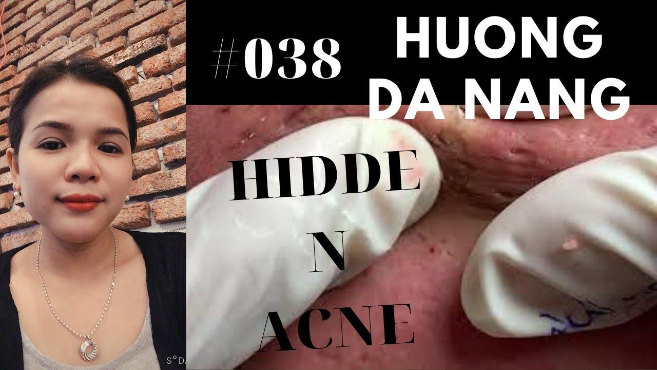#038 | Removal HIDDEN ACNE | Điều trị mụn ẩn | Acne treatment Hương Đà Nẵng Official