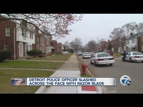 Detroit Police officer slashed by woman