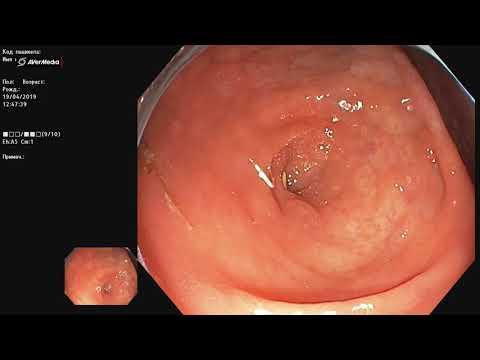 Круглый червь (острица?) в толстой кишке. Колоноскопия, энтеробиоз, гельминтоз.