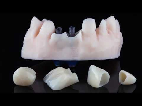 Connect System - Оne Time One Abutment - Soft Tissue Management - Immediate Load