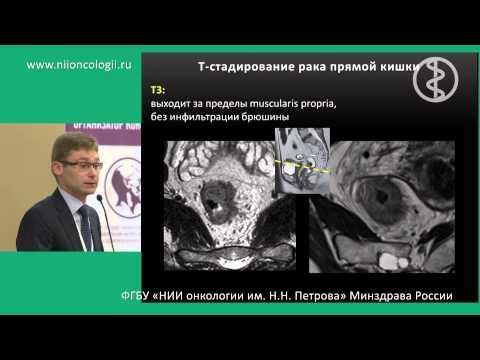 Онкология кишечника: симптомы, причины, лечение