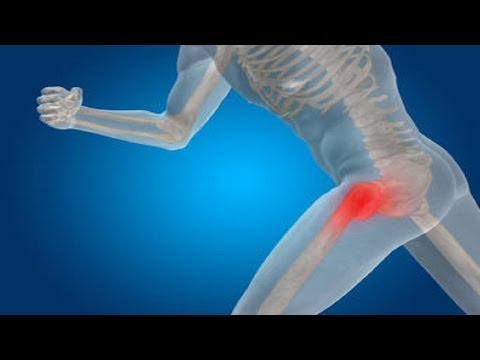 Accupuncture For Hip Pain – Hip Pain With Acupuncture
