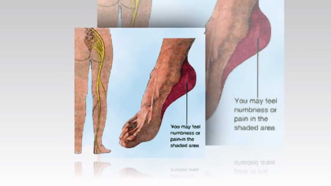 pain in top of foot| 1-623-295-1511 | podiatrist| bunion surgery ...