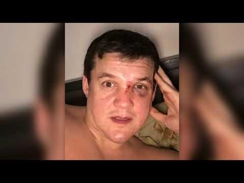 Островський, який збив дитину в Києві, рік тому брав участь у побитті чоловіка