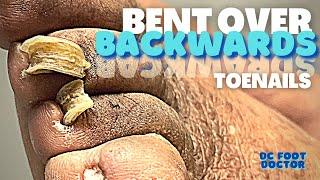 Bent Over Backwards: Trimming Fungal Toenails Bent Back By Shoe Pressure, Trimming Corns & Calluses