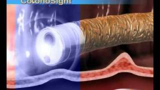 ColonoSight system for Colonoscopy, produxced by Virtual Point