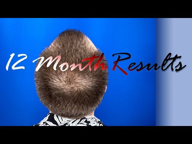 FUE Hair Transplant Results - Front and Crown hair restoration - Austin TX
