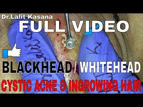 Repeat BLACKHEAD/WHITEHEAD/CYSTIC ACNE POPPING FULL VIDEO by