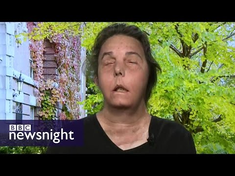 The incredible story of the woman who had a face transplant - Newsnight